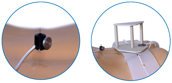 intracs-2d-3d-matching-localizer-mapperbelt