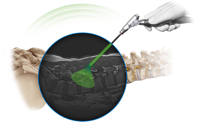 intracs-joimax-fiagon-header-spine-navigation