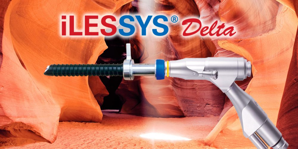 joimax launches the iLESSYS Delta system for treatment of spinal stenosis at DGNC 2015 annual meeting