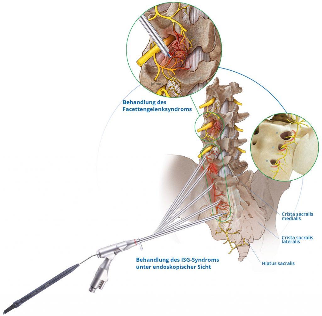 joimax, MultiZYTE, Facette, Gelenk, ISG, Iliosakral, Behandlung, Key visual, Schmerz, Schmerztherapie