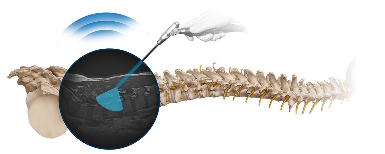 Intracs-em-Navigation Key-visual, Wirbelsäule, elektromagnetisch, Navigation, Blickwinkel des Endoskops, joimax, endoskopische Geräte, workflow