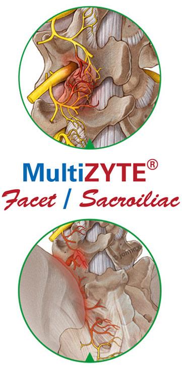 Schmerztherapie, unterer Ruecken, Facettengelenksyndrom, Iliosakralgelenksyndrom, isg, schmerzen, multizyte, facet, sacroiliac, nervenbehandlung