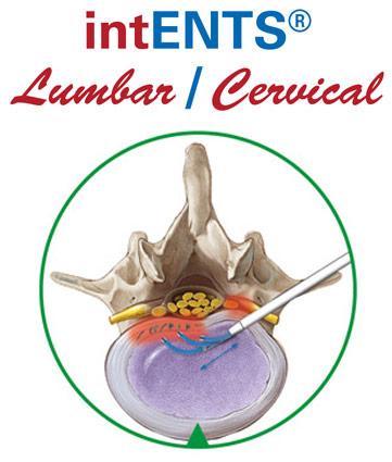 Schmerztherapie, unterer Ruecken, lumbar, bandscheibenvorfall cerviical, minimal-invasiv, intradisckal, beseitigung der Schmerzen mit RF Sonde