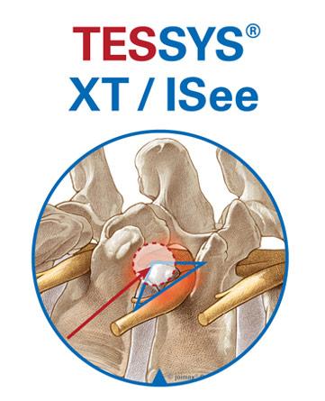 endoskopie systeme wirbelsäule, bandscheibenvorfall operieren, dekompression, transforaminal, endoskopiesche operation, bandscheibe thorakal, tessys familie