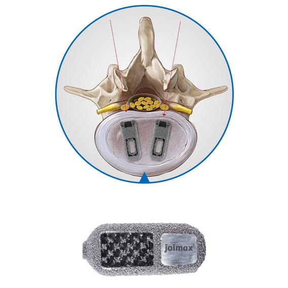 Endoskopische Wirbelsulenstabilisierung, wirbelsäule, Cages, Instrumente, Endoskopische Wirbelsäulenchirurgie, Delta Cages