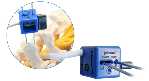 Intracs-em-Navigation, joimax, endoskopische Geräte, Patient Tracker, wird mit 2 K-Drähten in Wirbelsäule fixiert