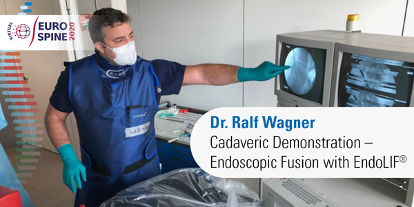 Cadaveric Demonstration – Endoscopic Fusion with EndoLIF®