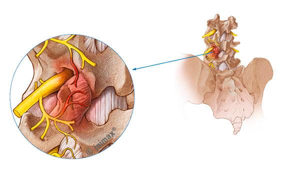 Facettensyndrom oder auch Wirbelgelenkarthrose | joimax GmbH