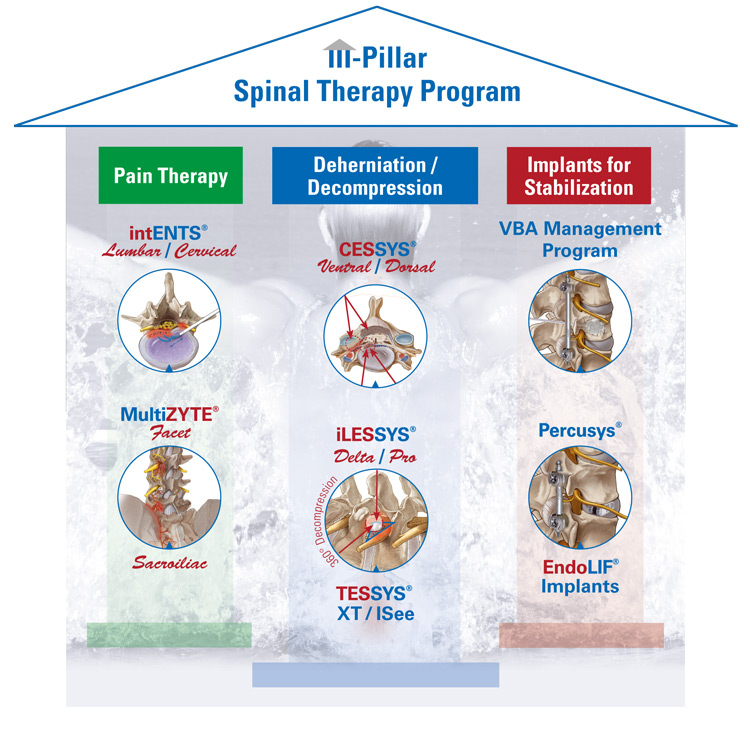 joimax-3_Pillars_spinal-therapy-program_EN_2018
