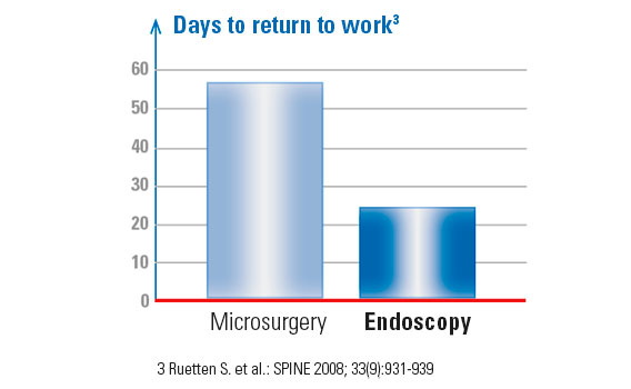 Content-herniated-disc-surgery-graphic-microsurgery-vs-endoscopy_568x350