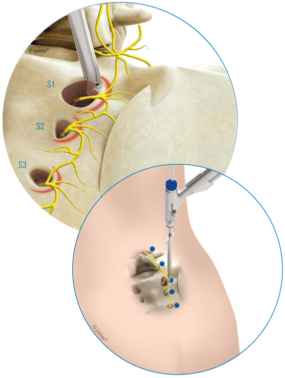 multizyte-si-treatment-rf-probe-targetpoints