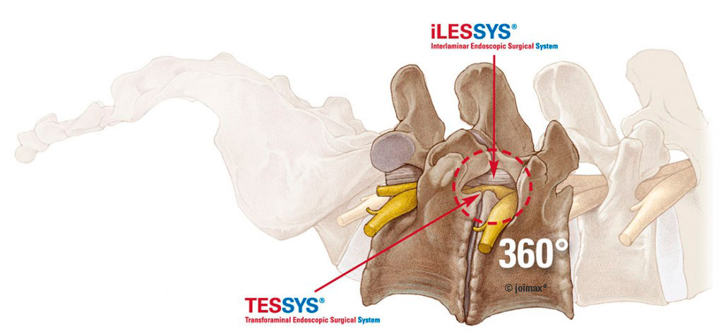 What Is Spinal Stabilization Surgery >> When to use TESSYS or iLESSYS | joimax GmBH