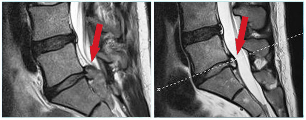 ilessys-endoscopic-spinal-surgery-system-indication-before-after