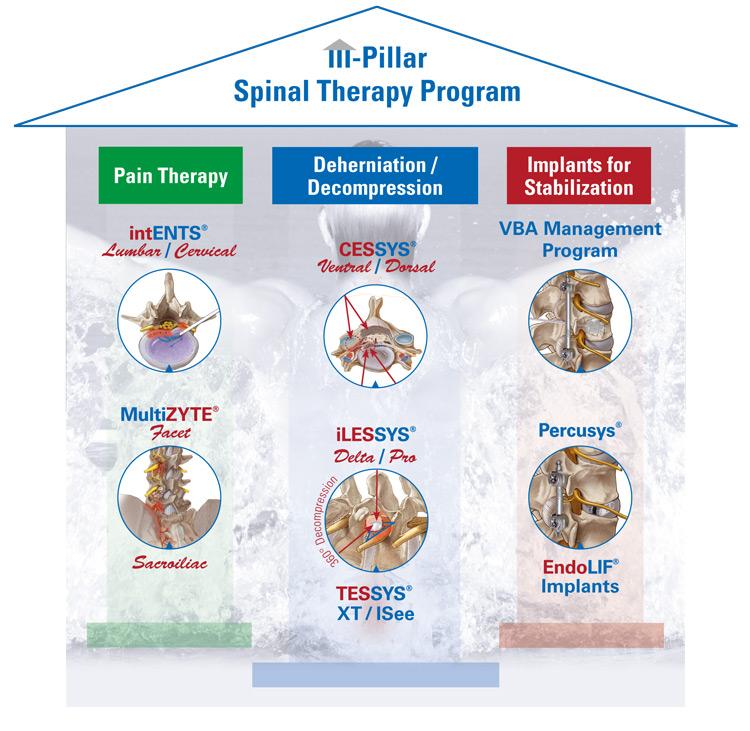 joimax-3_Pillars_spinal-therapy-program_EN_2018