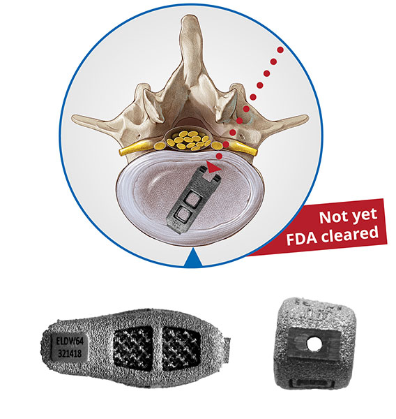 Endoscopi spinal stabilization, cages, implant, EndoLIF DoubleWedge-Cage, minimally invasive full endoscopic,