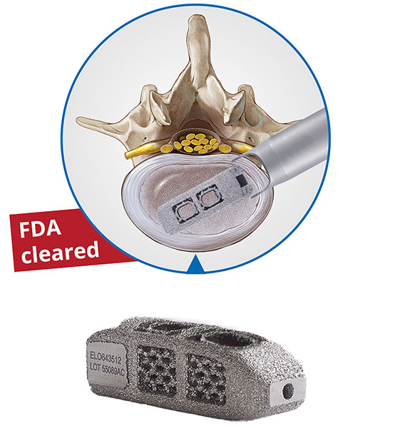 Endoscopi spinal stabilization, cages, implant, EndoLIF On-Cage, minimally invasive full endoscopic,