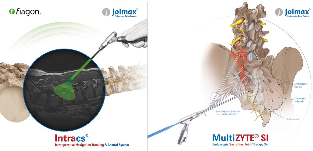 illu-multizyte-si-intracs-joimax_web