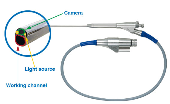 content_cessys-instruments-cervical-endoscope-cervical-decompression-endoscopic-spinal-surgery-system-joimax