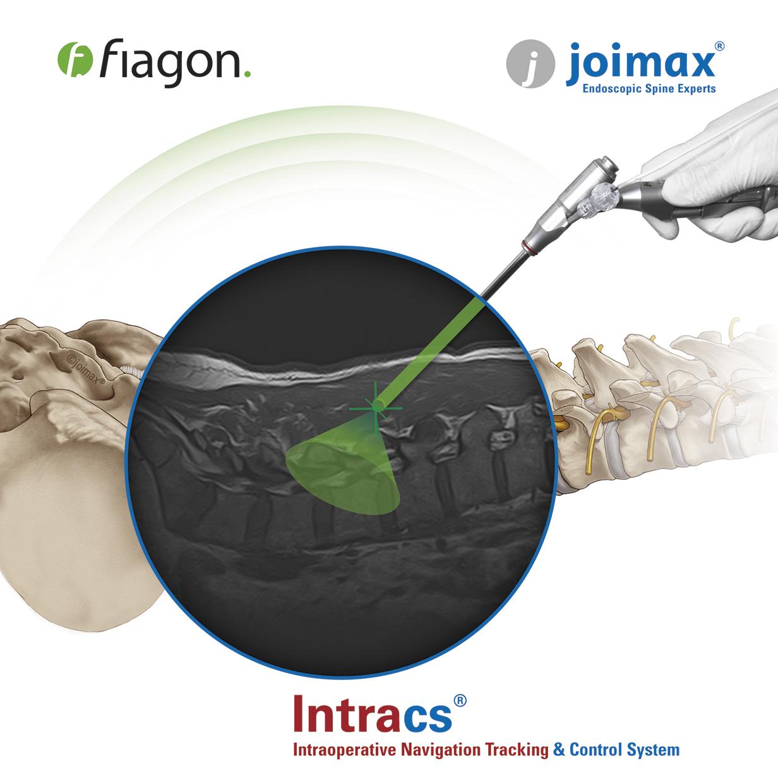 joimax_broshure_intracs_fiagon_titel